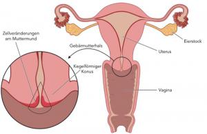 nach dysplasie op schwanger werden